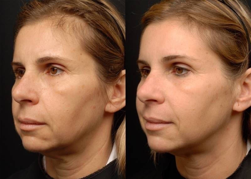 RF-Microneedling-in-Phoenix-Scottsdale-Arizona.jpg